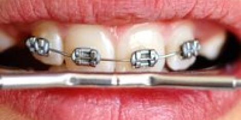 appareil dentaire plaquette