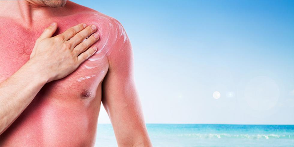 Coup de soleil comment l 39 viter et se soigner e sante - Comment soigner coup de soleil ...
