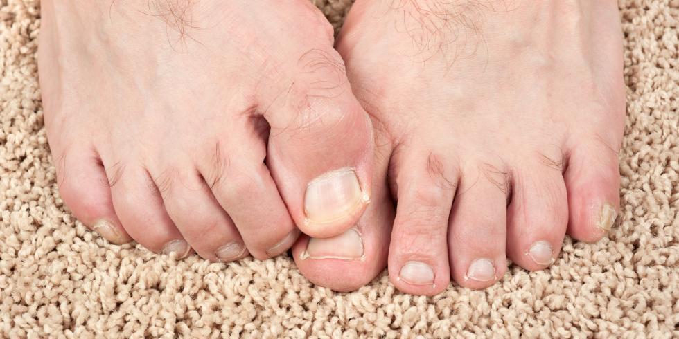 demangeaison entre les orteils du pied
