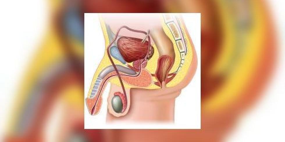 Cancer du testicule : toutes les informations sur le cancer du ...