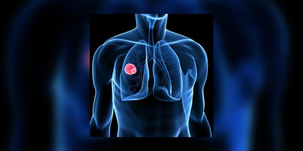 sympt mes du cancer du poumon quels sont les signes d 39 alerte e e sant. Black Bedroom Furniture Sets. Home Design Ideas