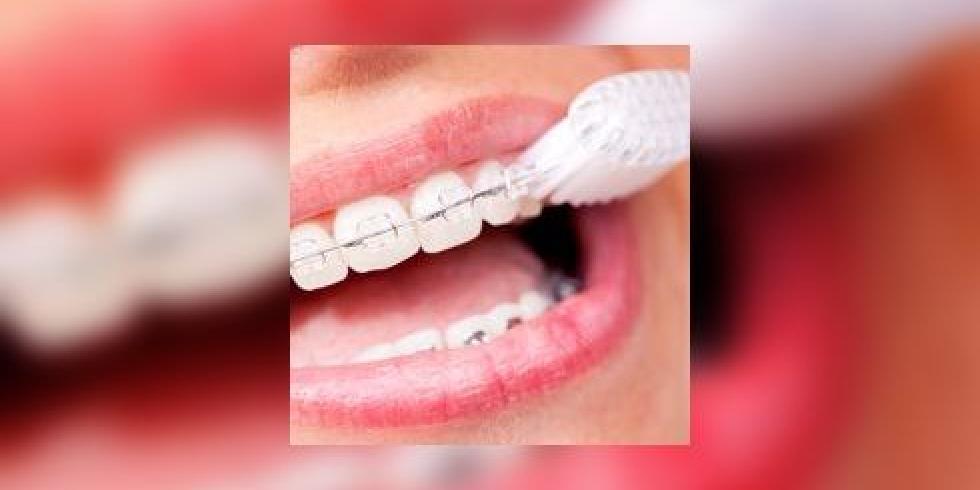orthodontie comment bien se laver les dents avec un appareil dentaire e sant. Black Bedroom Furniture Sets. Home Design Ideas