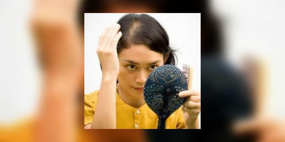 pelade maladie auto immune quand les cheveux chutent par plaques sympt mes et traitements de. Black Bedroom Furniture Sets. Home Design Ideas