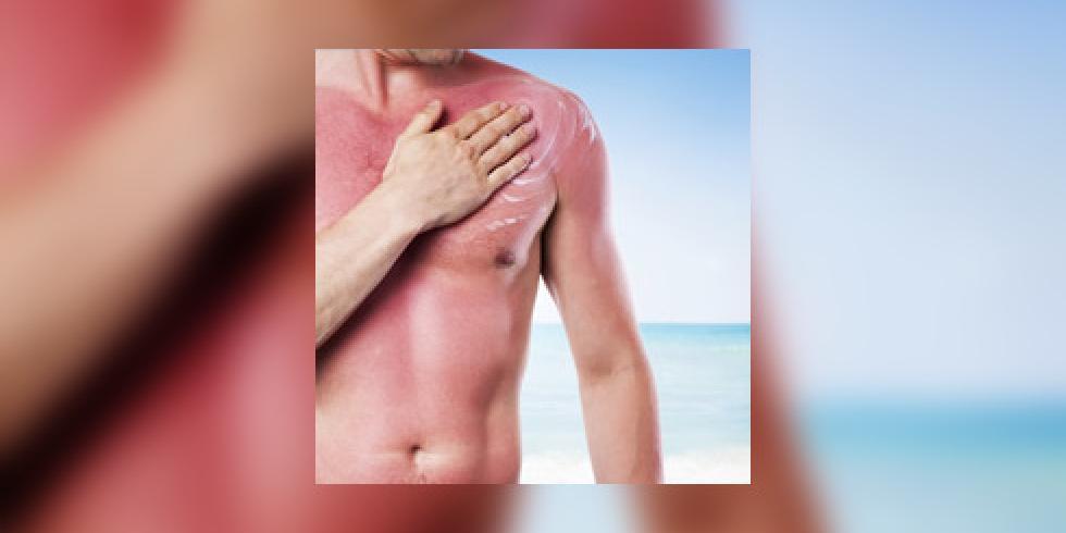 Comment soigner un coup de soleil page 2 e sant - Transformer un coup de soleil en bronzage ...